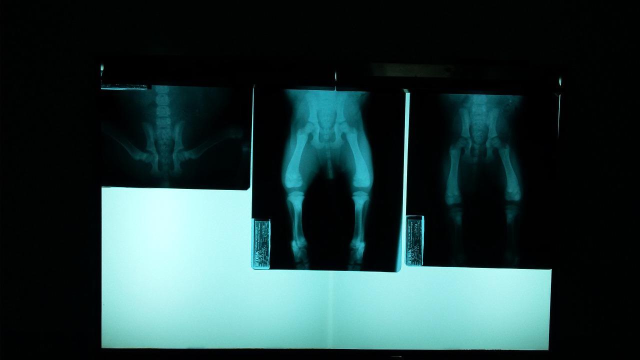 レッグエクステンションやスクワットは膝に悪い?膝への負担は?
